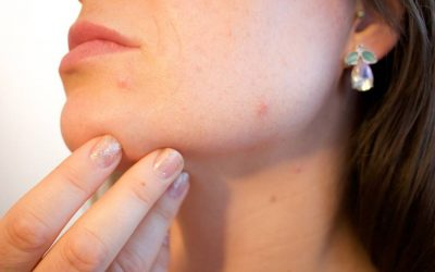 CBD Oil For Acne: Benefits, What Works & How To Use It…